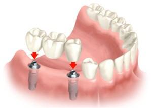 Brug op implantaten door implantoloog Jos Deurloo