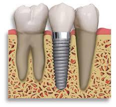 Implantaat door Jos Deurloo
