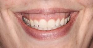 gummy-smile-300x155